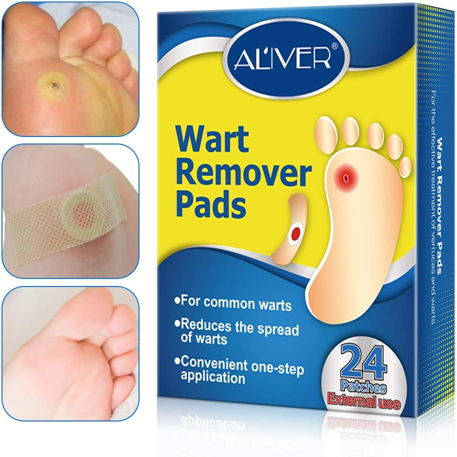 warts treatment on feet)