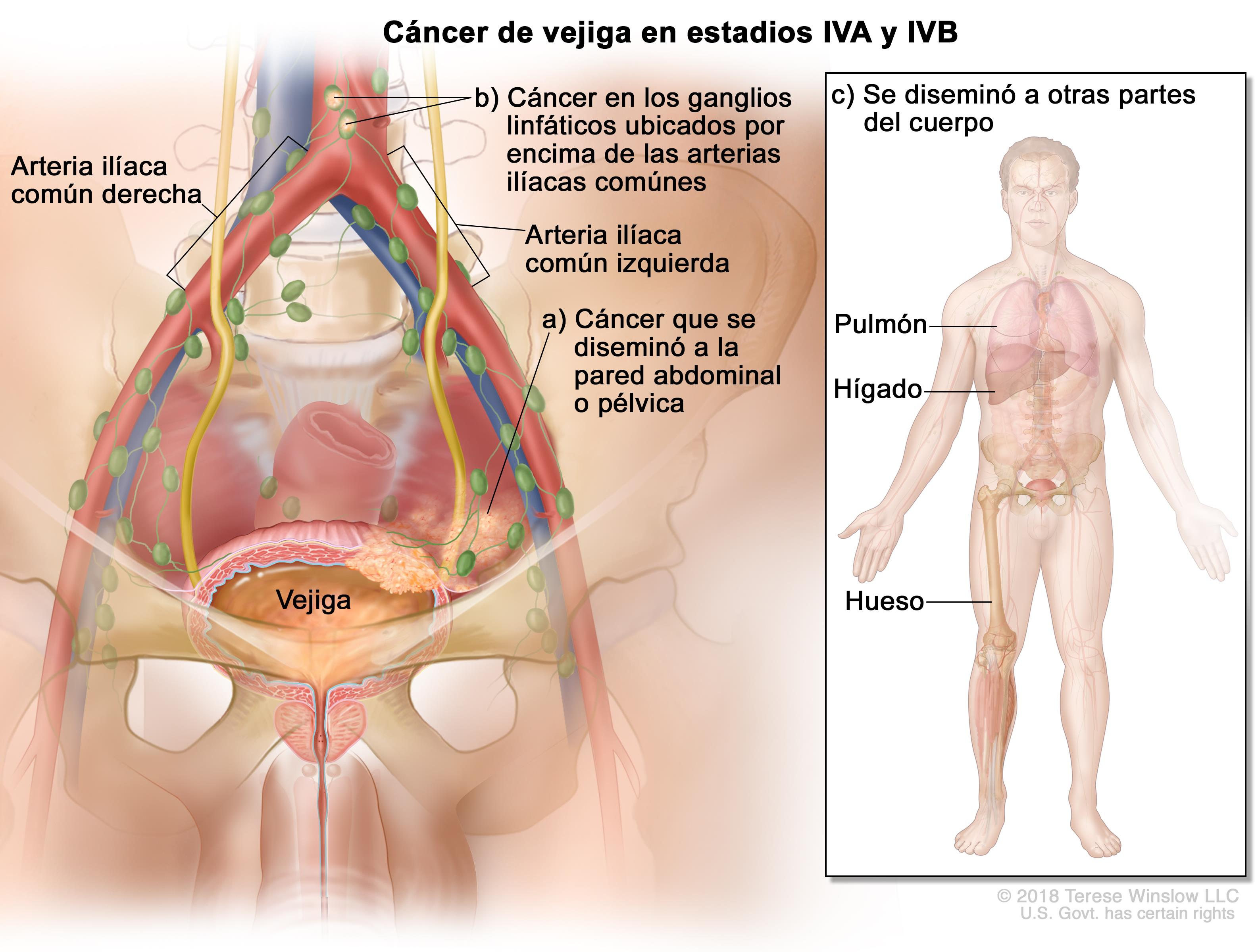 cancer tract urinar)