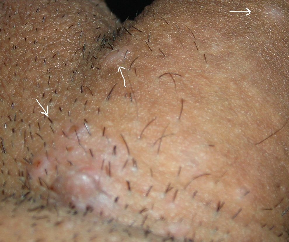 hpv wart vs pimple