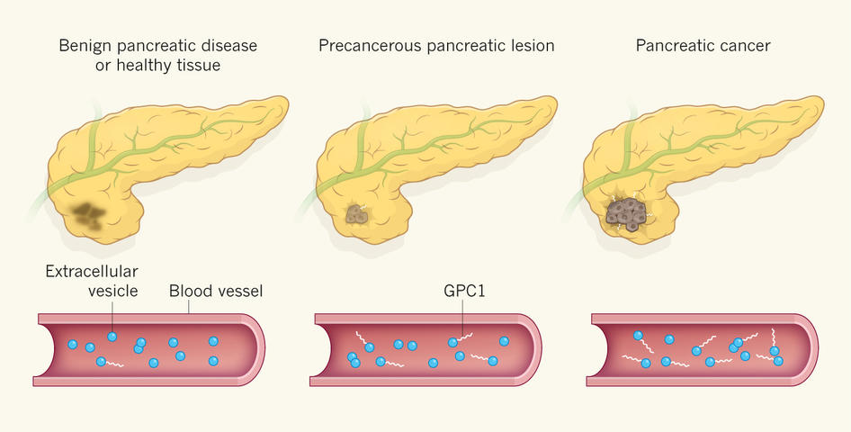 Pancreatic cancer detection, Research Abstract