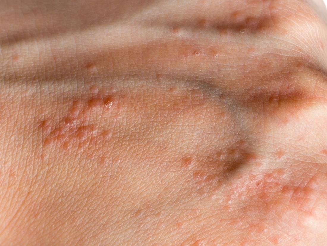 Warts on hands stress, How Air Conditioning Affects Your Skin | BeBEAUTIFUL