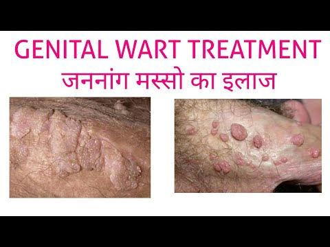 hpv warts meaning)
