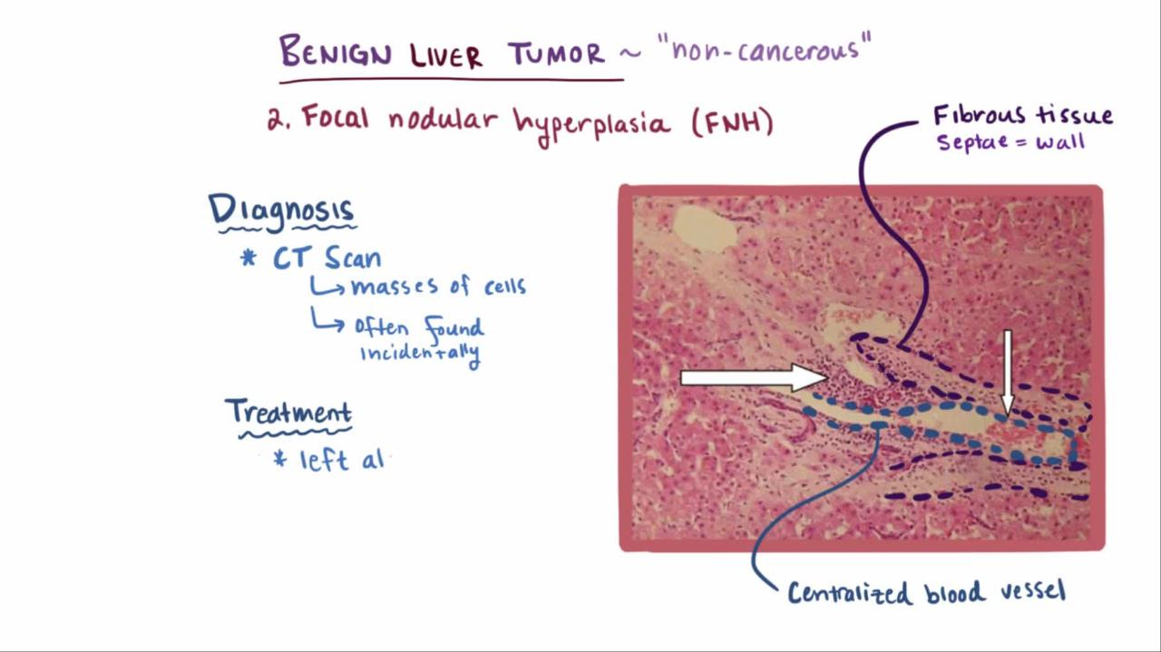 cancer hepatic malign