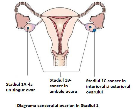 cancer ovarian stadiul 4)