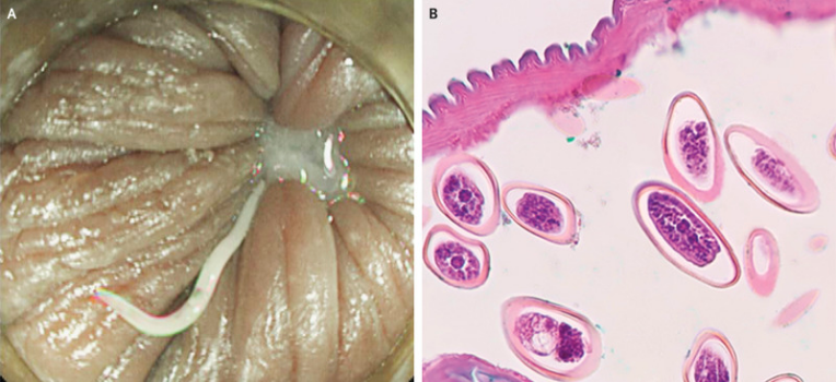 enterobius vermicularis uk difference between papilloma and polyp