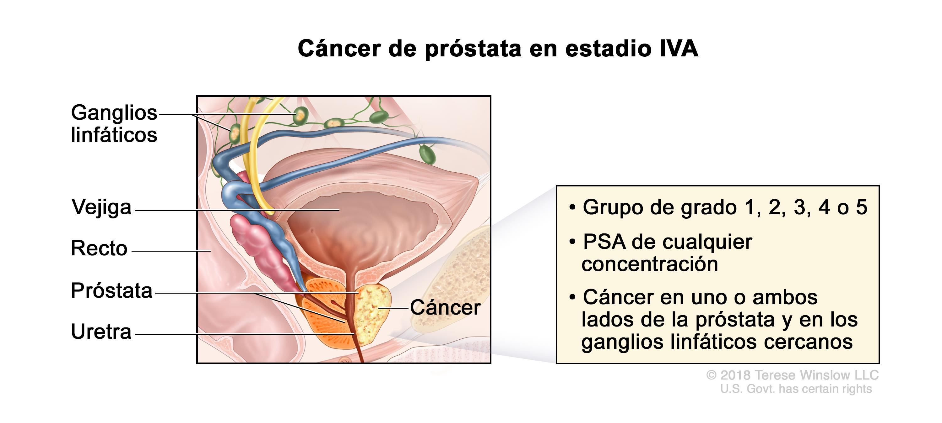 cancer de prostata leve)