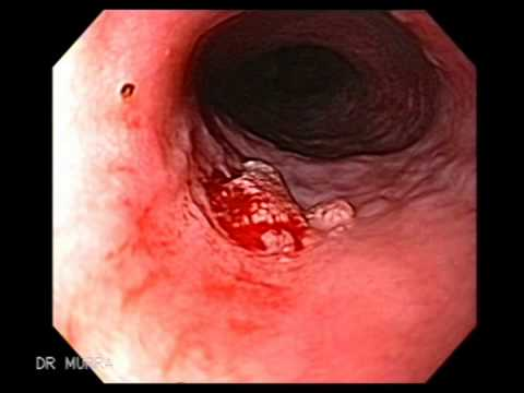 papilloma in the esophagus