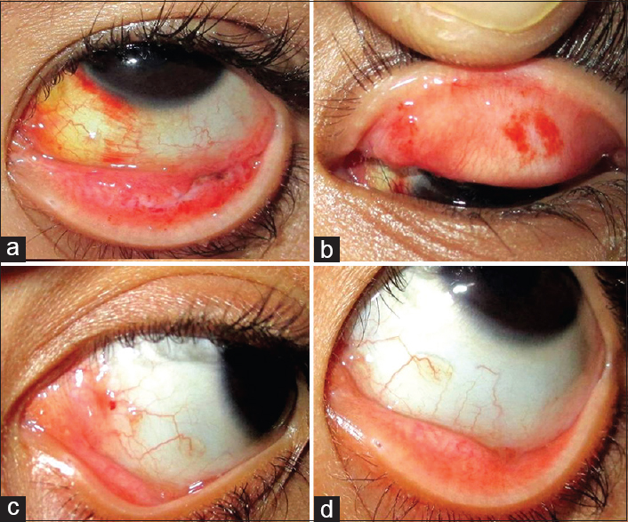 Conjunctival papilloma causes. Anemia x leucemia
