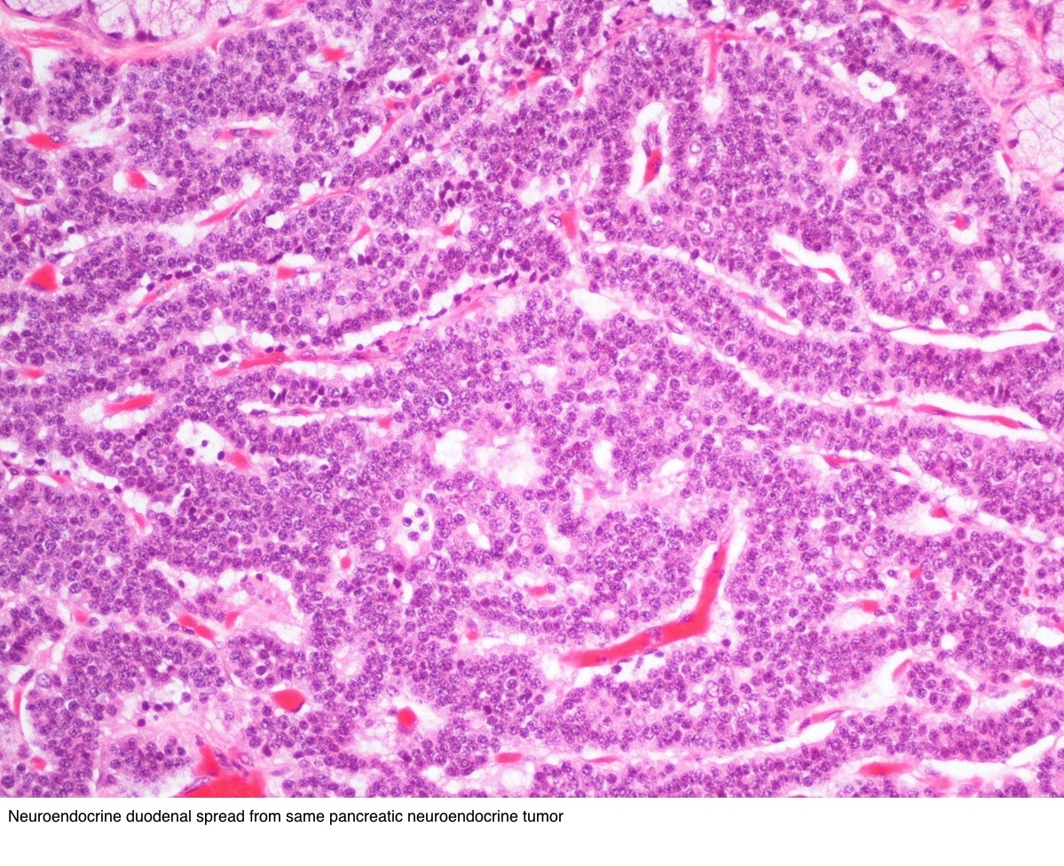 neuroendocrine cancer duodenum