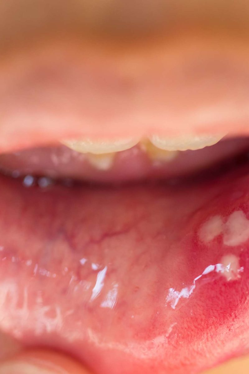 warts and mouth sores)