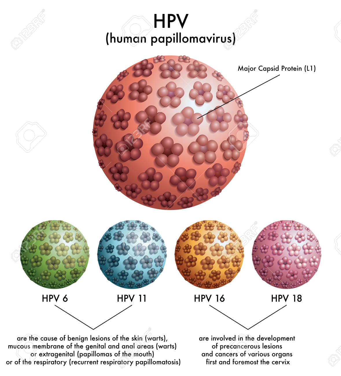 is human papilloma a virus