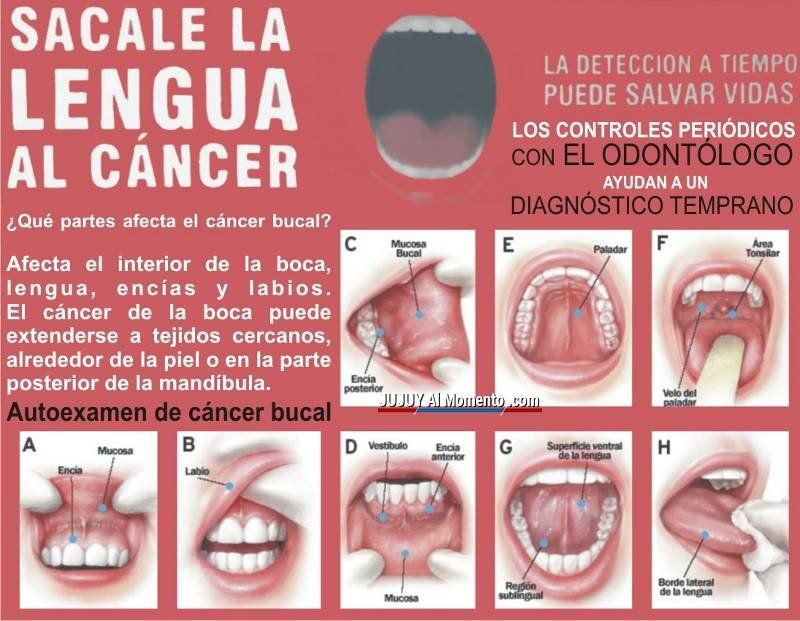 cancer bucal como prevenir)