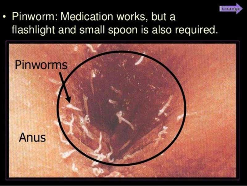 Pinworms include helminths - Enterobiasis host