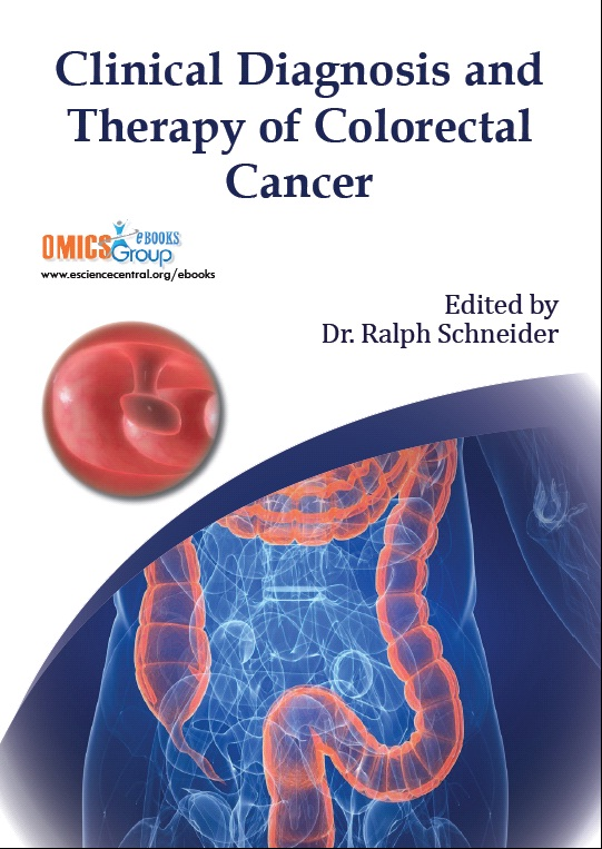colorectal cancer books)