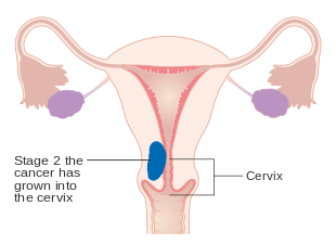 can hpv virus cause endometrial cancer metastatic cancer natural cure