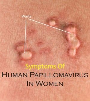 papillomavirus in females)