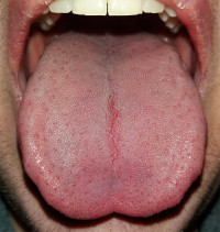 base of tongue cancer and hpv)