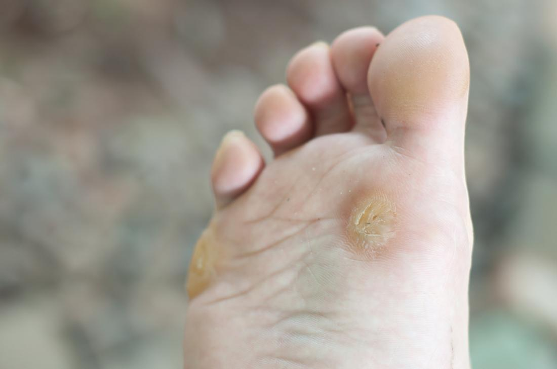 wart on foot and finger)