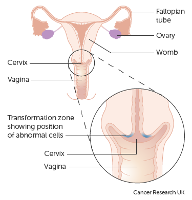 hpv treatment abnormal cells)