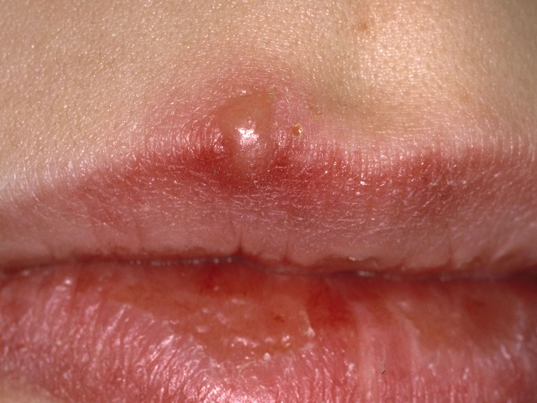 Hpv and canker sores, Hepatocellular cancer meaning