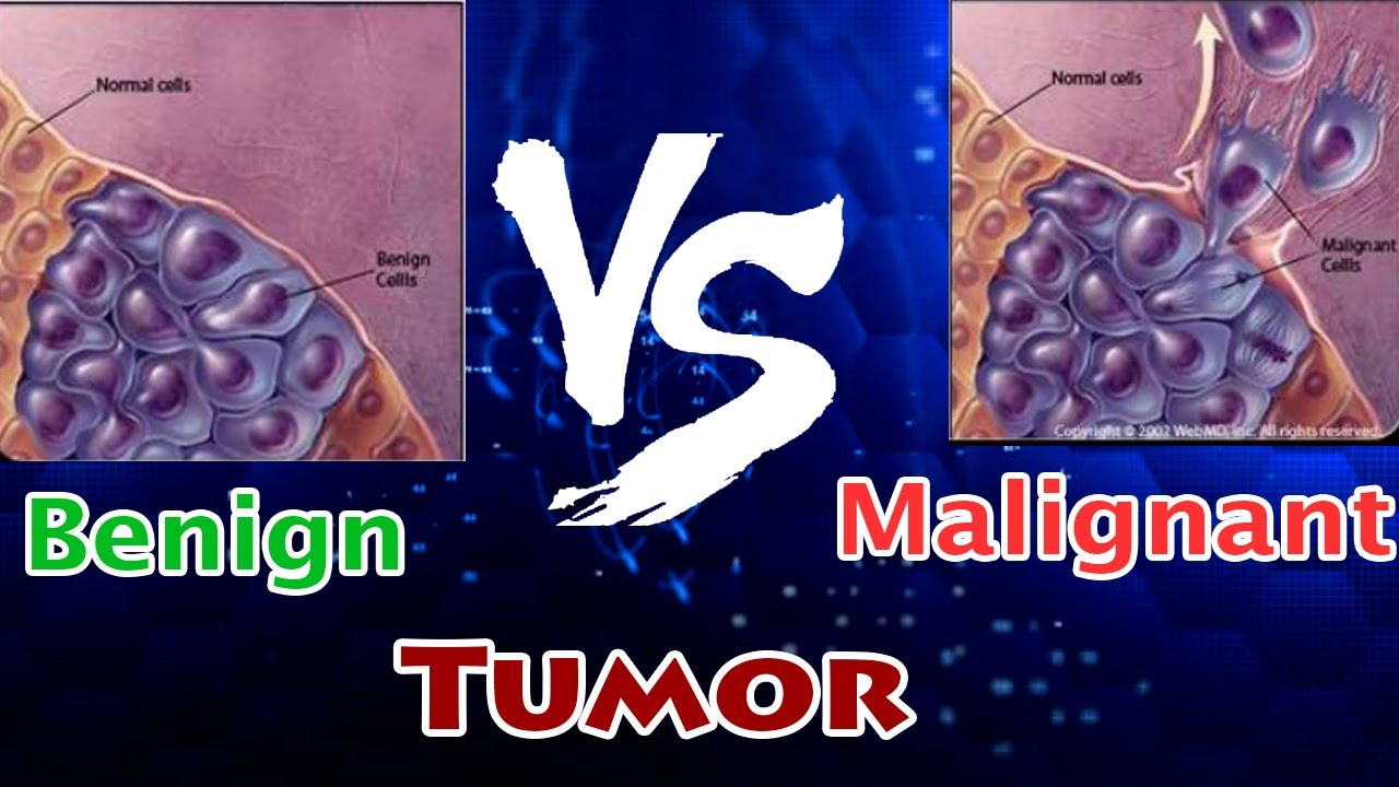 cancer malign vs benign)