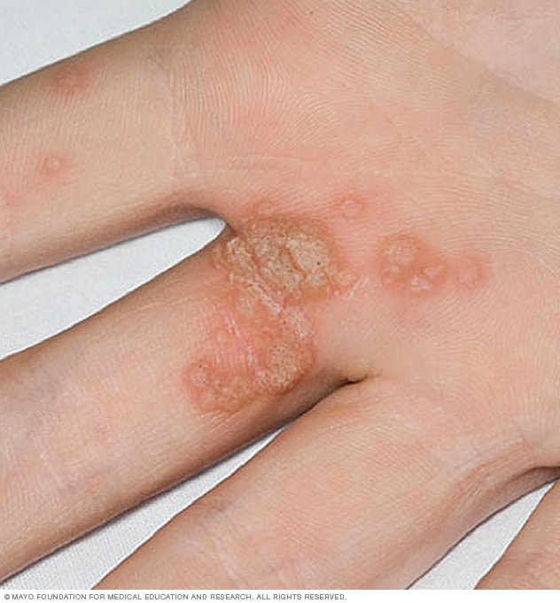 warts on both hands)