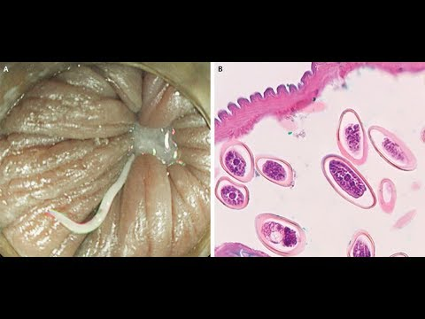 Toxocara paraziti belirtileri, Cancer and abdominal wall