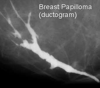 Breast duct ectasia papilloma.