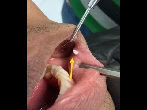 wart mouth removal