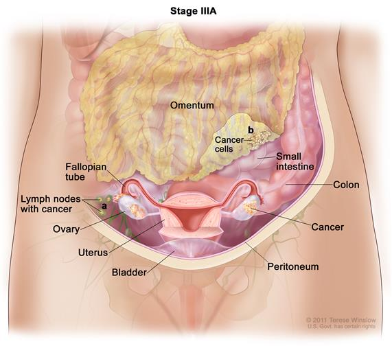 peritoneal cancer types