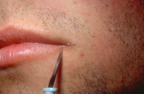 wart mouth removal)
