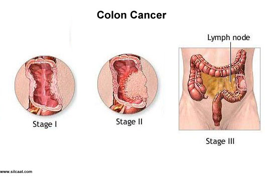 cancer de colon maligno)