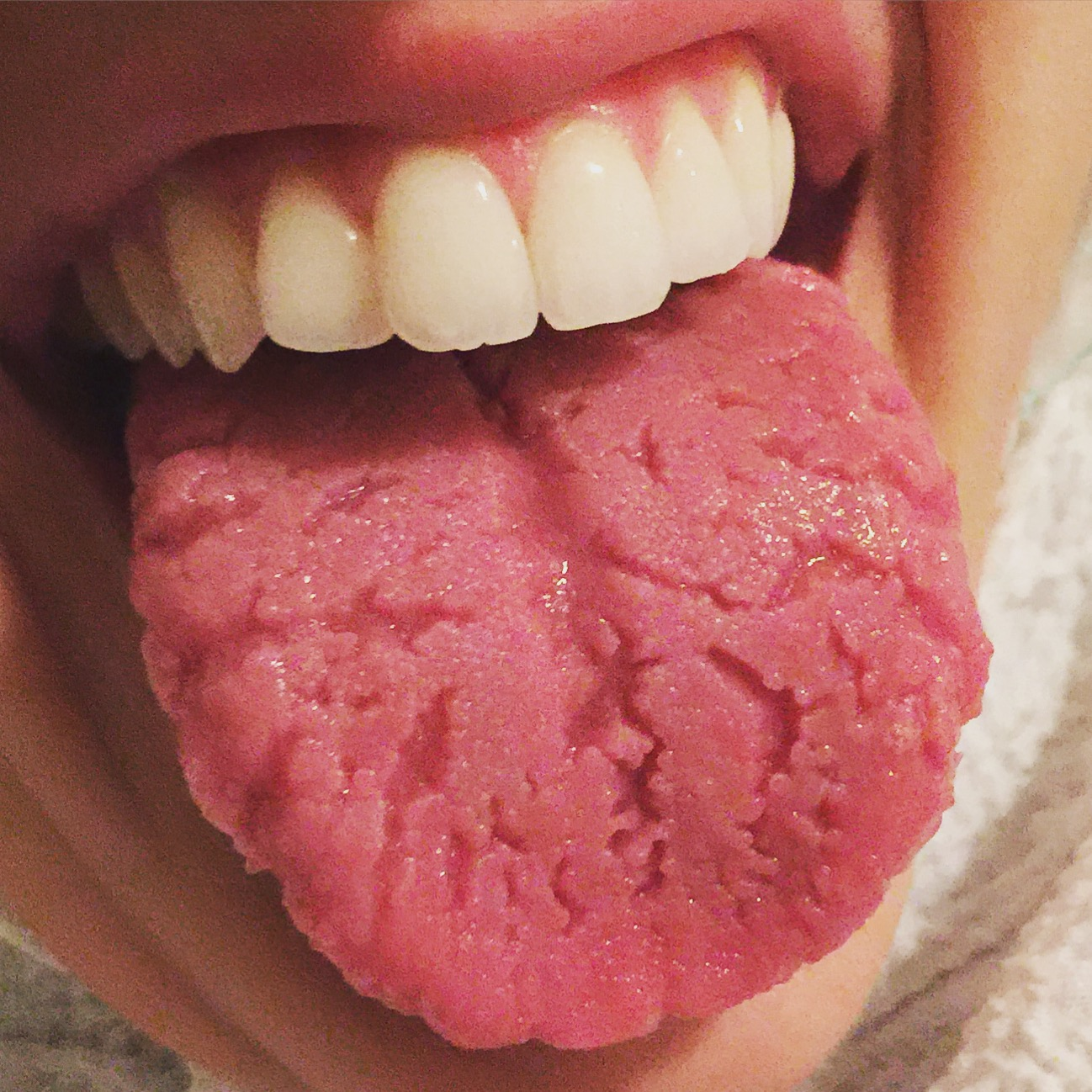 Hpv tongue nhs - RELATED ARTICLES