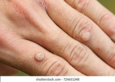 hpv warts on hand