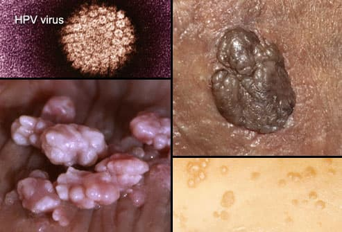 herpes hpv difference)