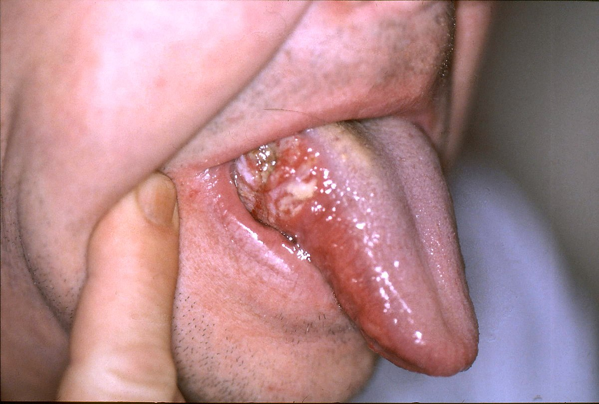 circumvallate papillae tongue treatment