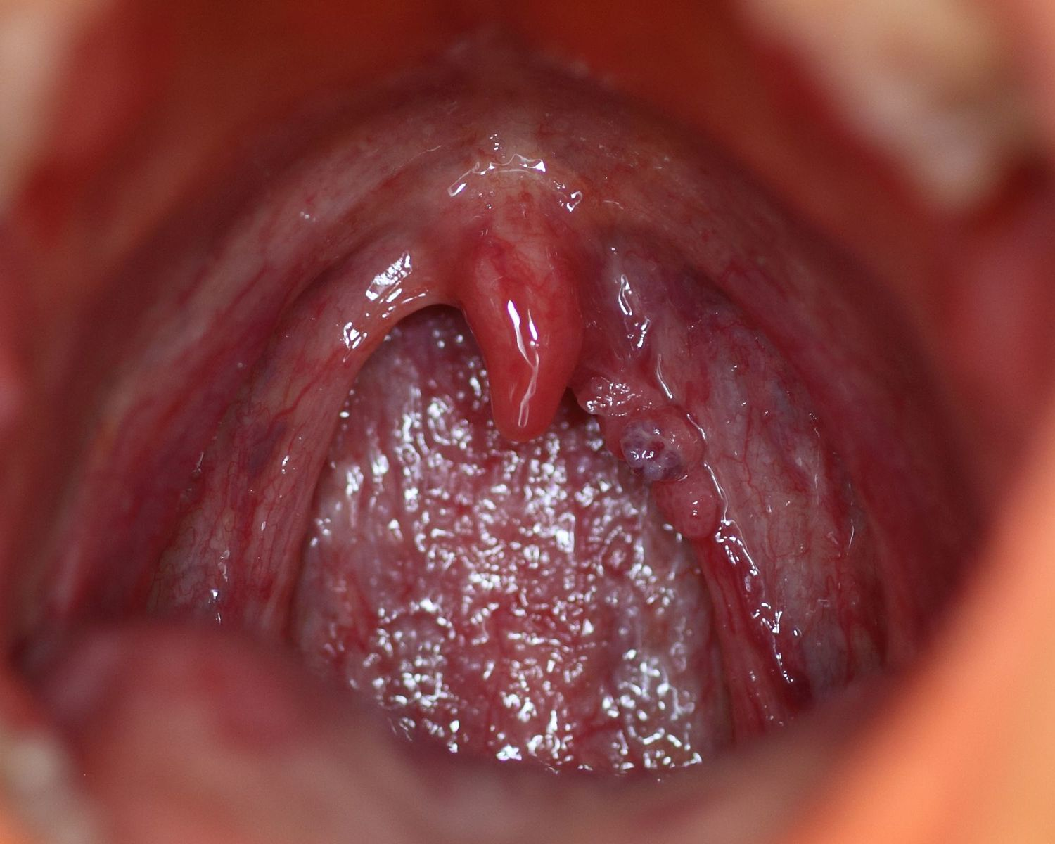 hpv lesion bleeding