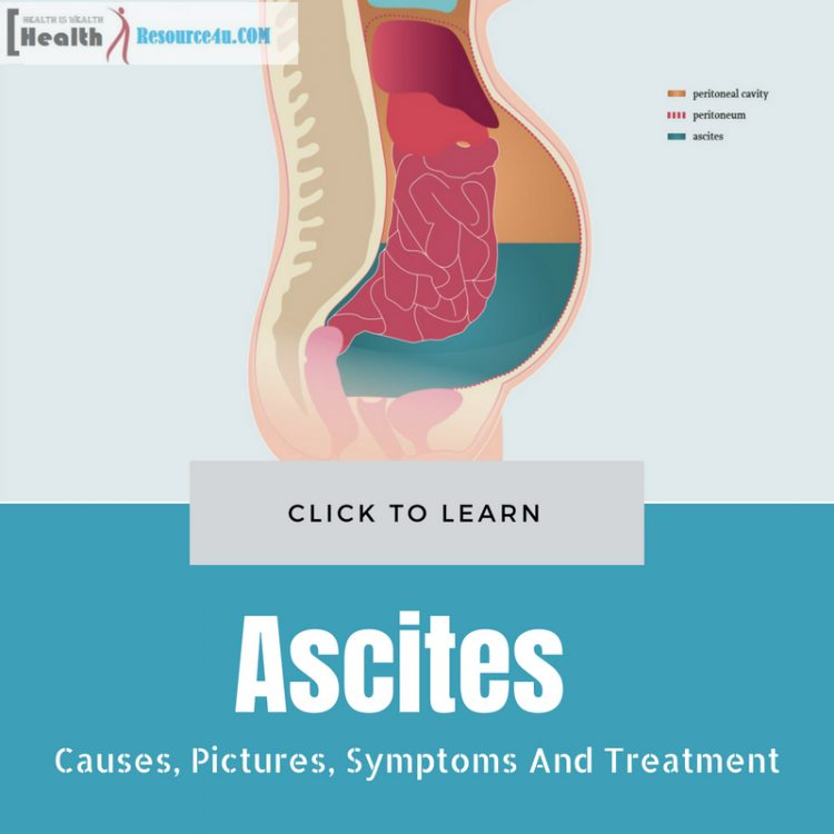 ascites cancer peritoneal