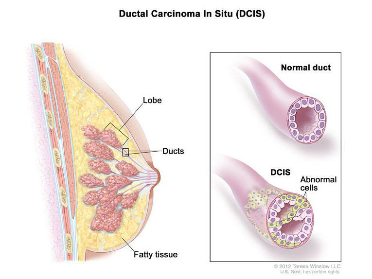 ductal papilloma risk)