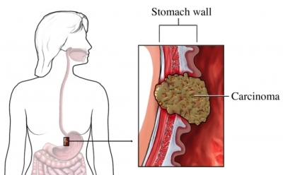 Cancer pain abdominal wall.
