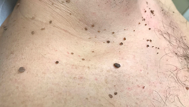 How to remove skin papilloma