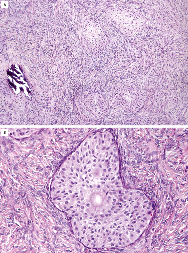 papillary urothelial cell proliferation)