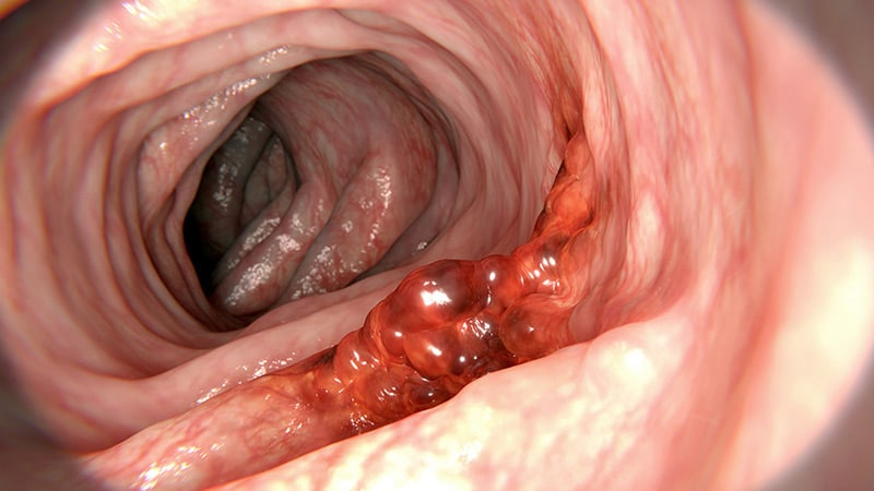 hpv in colon
