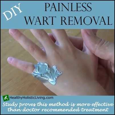 wart treatment diy)