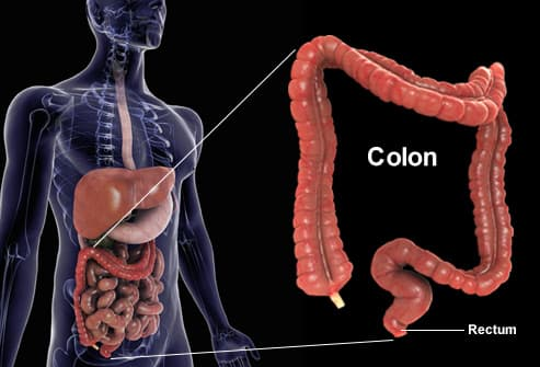 cancer de colon rectal simptome