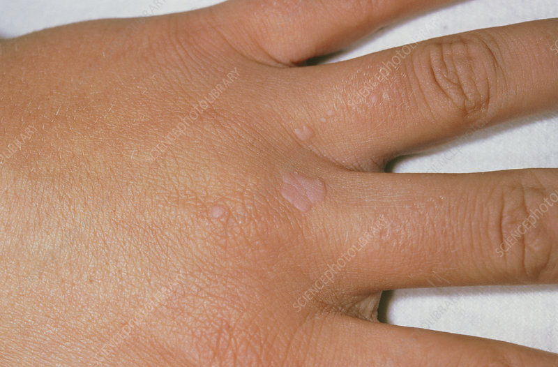 hpv common wart