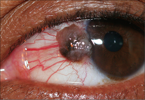 papilloma conjunctival treatment