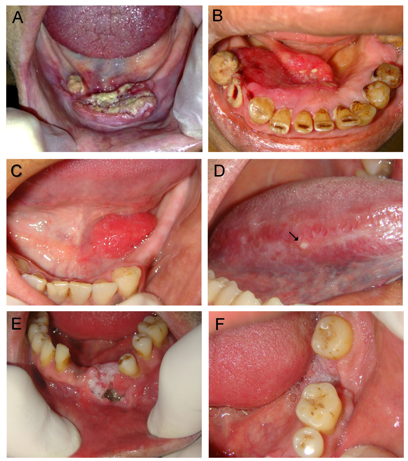 papilloma wart in mouth