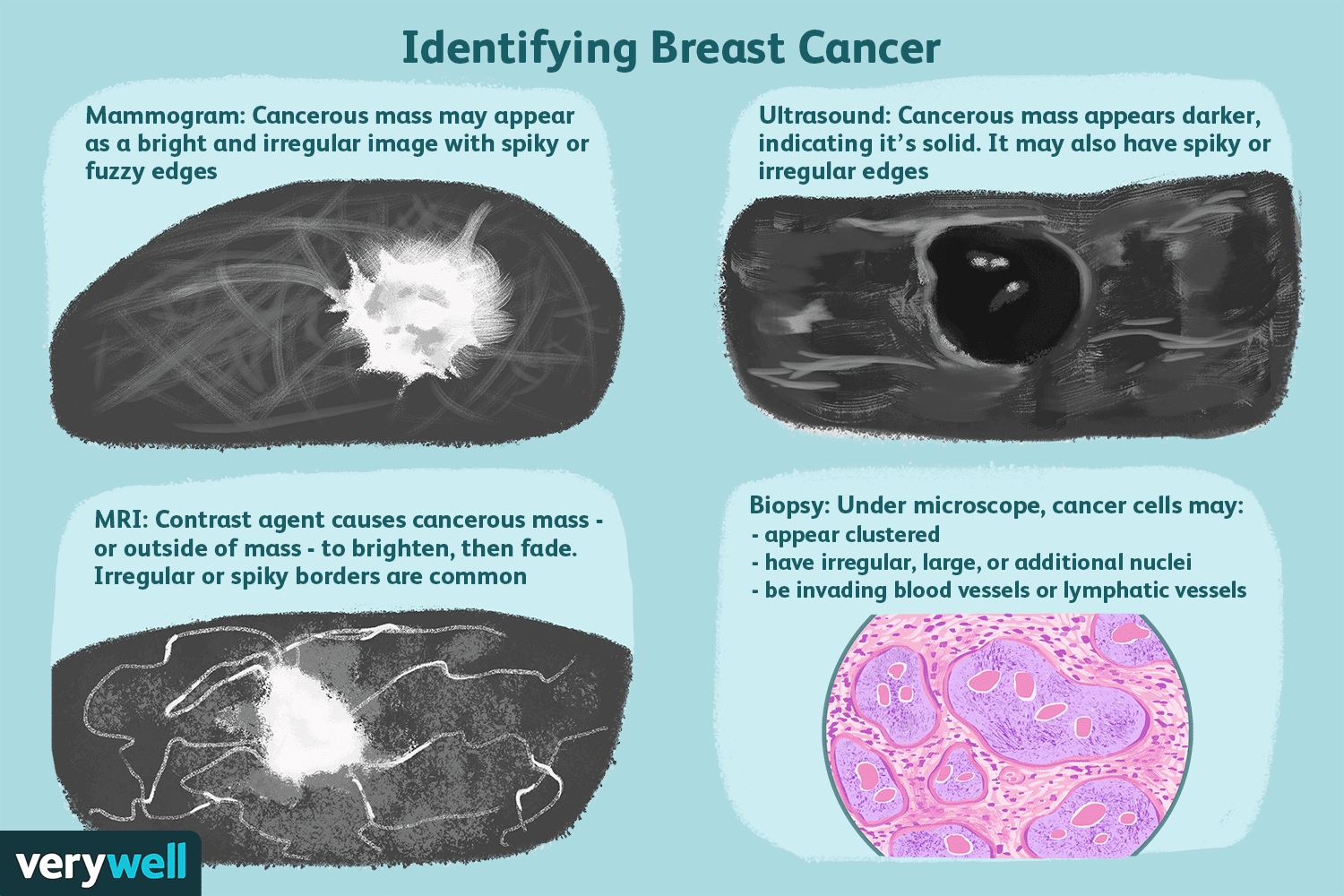 benign cancer tumor