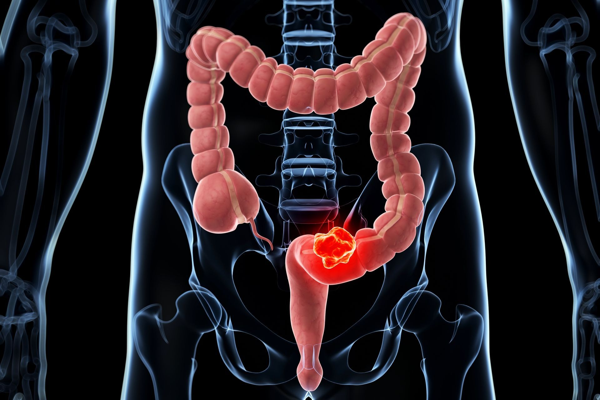 cancer colorectal vomissement